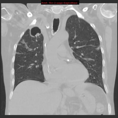 Aspergillome pulmonaire et pneumopathie infectieuse  TDM Thorax Coronal