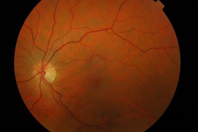 Occlusion de la branche temporale inférieure de l'artère centrale de la rétine OD FO ODG