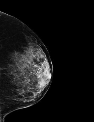 Carcinome canalaire in situ de grade intermédiaire LML