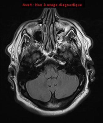 Dissection idiopathique artère cérébrale antérieure ser006img00001
