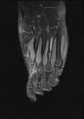 Fracture de contrainte du tiers moyen du 4ème métatarse droit Coronal DP fat sat