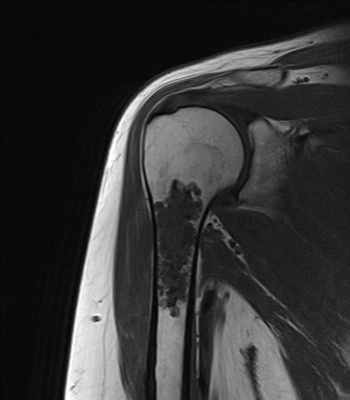 Enchondroma of the proximal humerus Coronal T1 MRI
