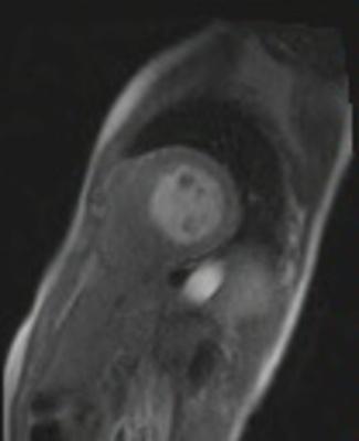 HVG avec asynchronisme marqué du septum interventriculaire tfl_sr_128_4sl_PAT3_GADO