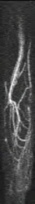 Hypothenar hammer syndrome TWIST COR RES TEMP=2.6s_SUB_MIP_SAG