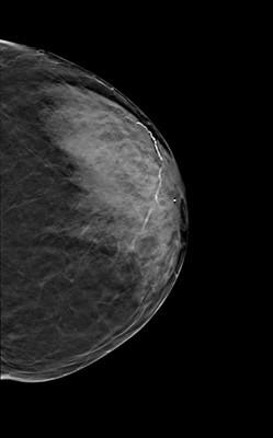 Intermediate grade ductal carcinoma in situ  LCC Tomosynthèse