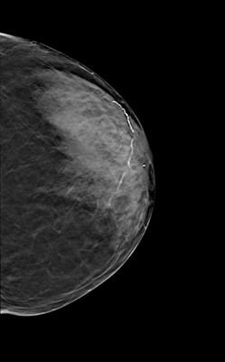 Carcinome canalaire in situ de grade intermédiaire LCC Tomosynthèse