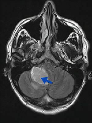 hémangioblastome  IRM Crâne Axial FLAIR