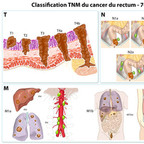 Cancer colorectal - Staging TNM du cancer du rectum classification