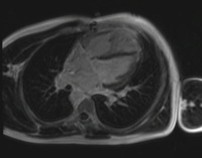 Correction complète de Fallot avec dilatation des cavités droites et insuffisance pulmonaire fl3d_51seg_ir 4 CAV TI 300