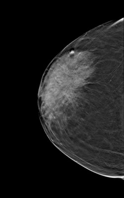 Carcinome canalaire in situ de grade intermédiaire RCC Tomosynthèse