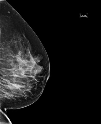Stable fibroadenomas and hamartoma in the right breast, ACR 2. 6-LML