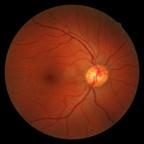 Occlusion de l'artère cilio-rétinienne reperfusée Rétinophotos OD