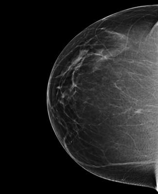 Discordance en imagerie avec macrobiopsie sans élément tumoral: décision de surveillance RCC