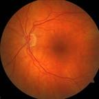 TM + syndrome de traction vitréofovéolaire sur l'oeil adelphe FO OD INITIAUX