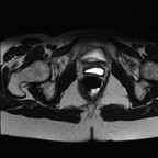 Kyste de Gartner  IRM Pelvis Axial T2