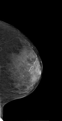Intermediate grade ductal carcinoma in situ  LML Acquisition Tomo