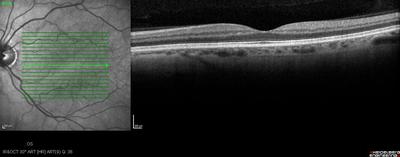 Occlusion de la branche temporale inférieure de l'artère centrale de la rétine OD OCT maculaire OG