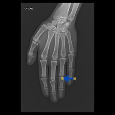 enchondrome  Radiographie Membre supérieur