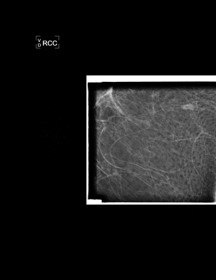 Discordance in imaging with macro-biopsy and no tumoral elements: decision taken for monitoring RCC Agrandi