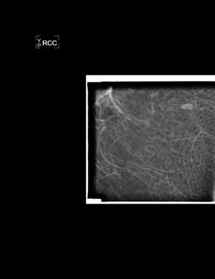Discordance en imagerie avec macrobiopsie sans élément tumoral: décision de surveillance RCC Agrandi