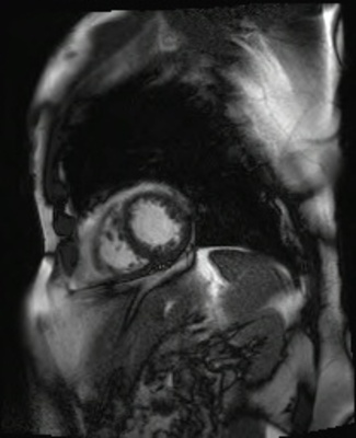 Membrane de l'infundibulum pulmonaire, sans étiologie précise... CINE TrueFISP_PA