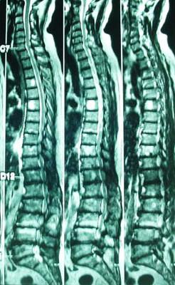asoociation myélopathie  dorsale et canal lombaire étroit IRM rachis entier