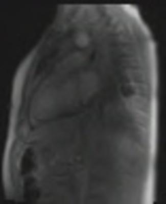 Péricardite aiguë constrictive tfl_sr_128_4sl_PAT3_