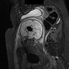 Anevrysme de la veine de Galien   IRM foetale STIR coronal