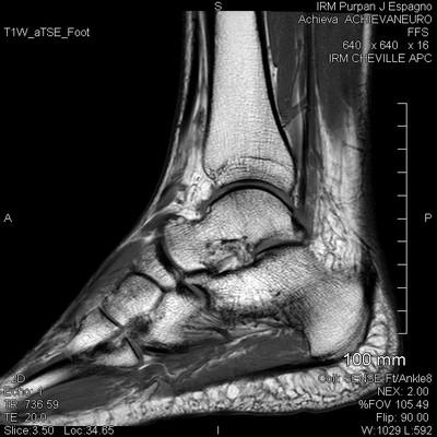 Rupture partielle du tendon calcanéen IRM