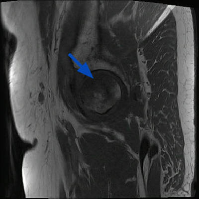 Ostéonécrose aseptique bilatérale des têtes fémorales  IRM Sagittal T1 TSE