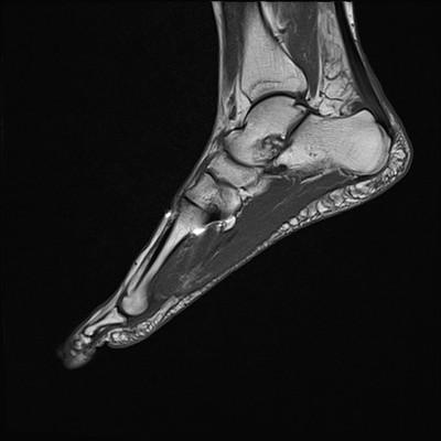 Tendinopathie aiguë achiléenne droite inflammatoire et myoaponévrosite plantaire superficielle T1 Sagittal