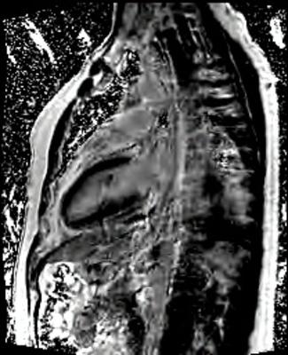 Péricardite aiguë constrictive PSIR-TFL LA_PSIR