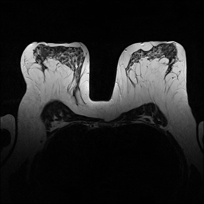 Doubt regarding architectural distortion of the right upper lateral quadrant, corresponding to superimpositions with tomosynthesis. T2