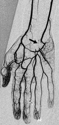 Hypothenar hammer syndrome Fig-03b