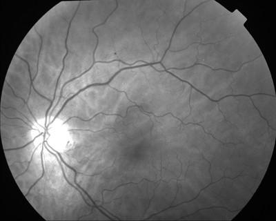 Occlusion de la branche temporale inférieure de l'artère centrale de la rétine OD Clichés ODG M1