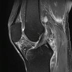 Разрыв апоневроза полуперепончатой мышцы  IRM Membre inférieur DP