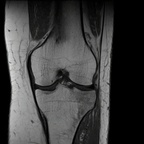 Трабекулярный субхондральный перелом  IRM genou Coronal T1 TSE