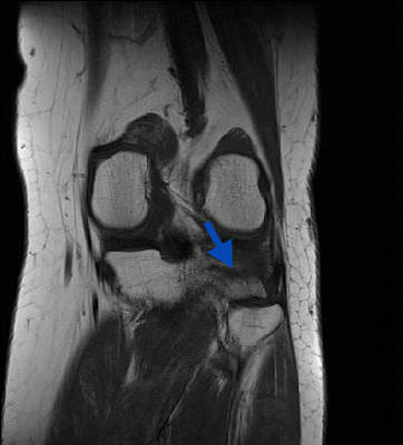 Fracture trabéculaire sous-chondrale  IRM genou Coronal T1 TSE