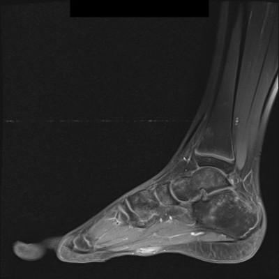 Maladie de Ledderhose/Fibromatose superficielle plantaire IRM Pied gauche sagittale T1 FS GADO