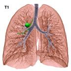 Cancer du poumon T1