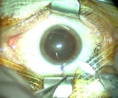 Cataracte sous capsulaire postérieure et astigmatisme cornéen - Implantation multifocale torique Pré op