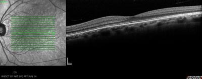 Mélanome iris et corps ciliaire OCT macula OG