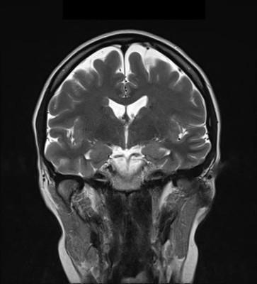 Kyste rétro cérébelleux associé à des hétérotopies périventriculaires IRM maternelle Coro T2