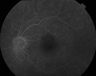 Occlusion de la branche temporale inférieure de l'artère centrale de la rétine OD Angio Fluo OG M1