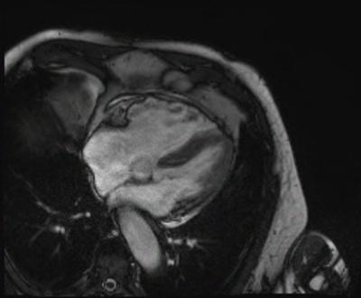 Dysplasie arythmogène du ventriule droit (DAVD) : critère majeur en IRM TRUFI 4C GADO_CINE