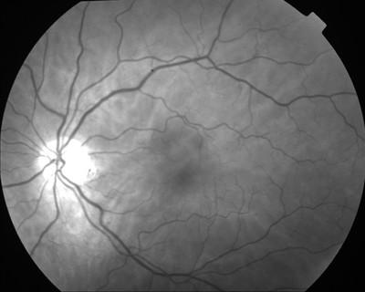Occlusion de la branche temporale inférieure de l'artère centrale de la rétine OD Clichés anérythres ODG
