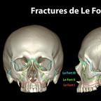 Fractures de la face lefort-fracture-skull-classification-fr