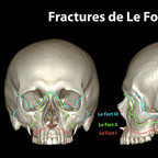 Fractures de la face lefort-fracture-skull-classification-fr