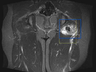 Déchirure musculaire  IRM hanche coronal STIR
