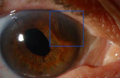 Mélanome iris et corps ciliaire LAF post op PKE OD